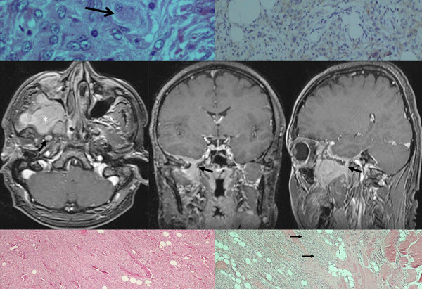 An Infratemporal Meningioma: A Diagnostic Dilemma