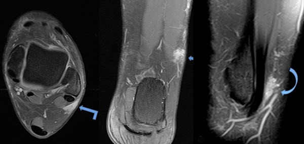 Magnetic Resonance Imaging Appearance of Erythema Nodosum: A Case Report