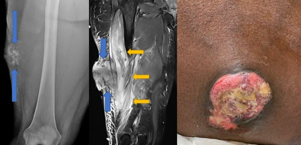 Unusual Presentation of Widely Metastatic Extraskeletal Osteosarcoma: Case Report