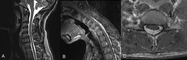 Magnetic resonance imaging in Hirayama Disease