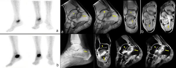 Spontaneous talar and calcaneal fracture in rheumatoid arthritis: a case report