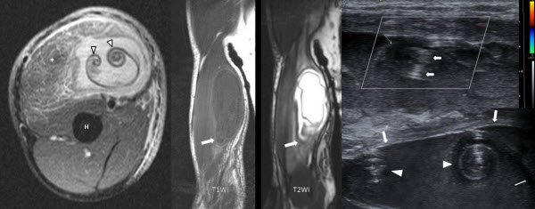 Imaging of ruptured endocyst in an isolated intramuscular hydatid cyst - The Scroll appearance