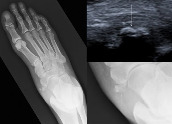 Calcific tendonitis of the tibialis posterior tendon at the navicular attachment