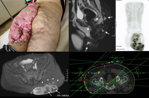 Giant  keloid of left buttock treated with post-excisional radiotherapy
