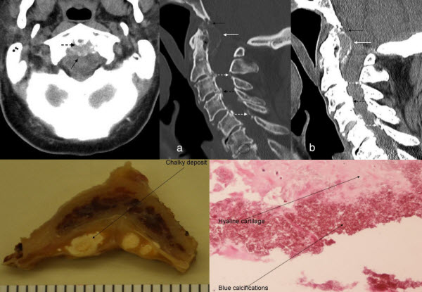 CPPD Crowned Dens Syndrome with clivus destruction: A case report