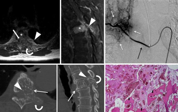 Aggressive hemangioma of the thoracic spine