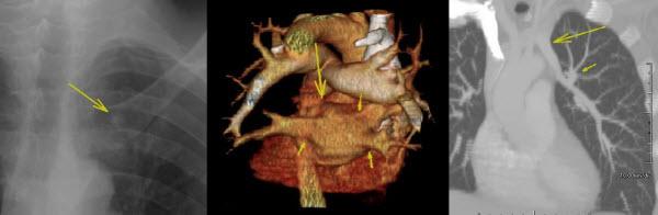 Rare Case of Left Upper Lobe Partial Anomalous Pulmonary Venous Connection