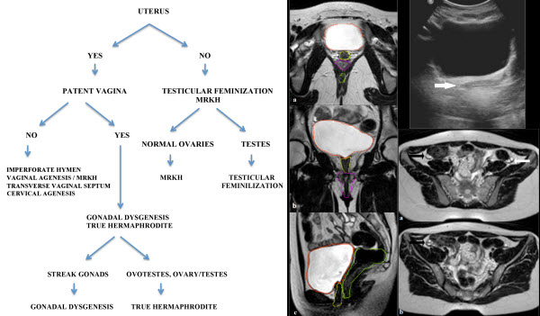 Mayer-Rokitansky-Kuster-Hauser Syndrome diagnosed by Magnetic Resonance Imaging. Role of Imaging to identify and evaluate the uncommon variation in development of the female genital tract.