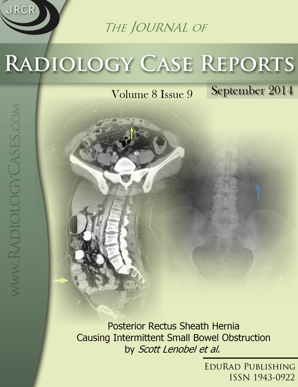 Journal of Radiology Case Reports September 2014 issue - Cover page: Posterior Rectus Sheath Hernia Causing Intermittent Small Bowel Obstruction by Scott Lenobel et al.