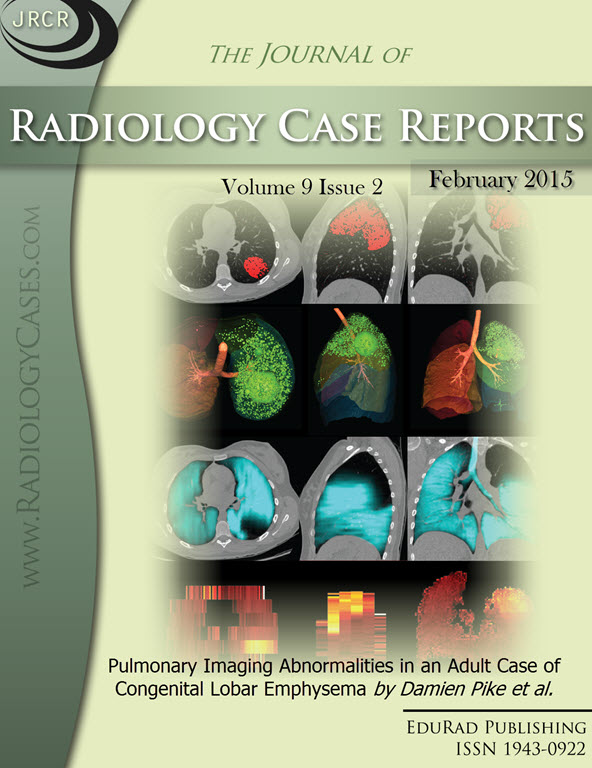 Journal of Radiology Case Reports February 2015 issue - Cover page: Pulmonary Imaging Abnormalities in an Adult Case of Congenital Lobar Emphysema by Damien Pike et al.