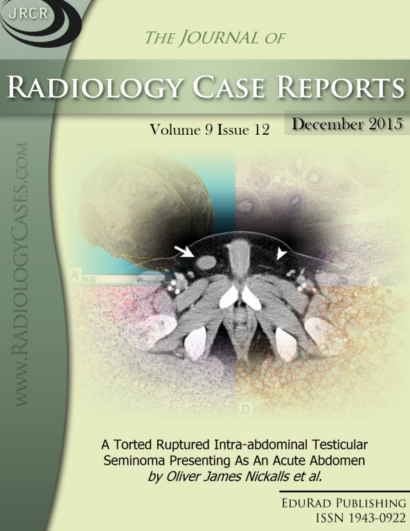 Journal of Radiology Case Reports December 2015 issue - Cover page: A Torted Ruptured Intra-abdominal Testicular Seminoma Presenting As An Acute Abdomen by Oliver James Nickalls et al.