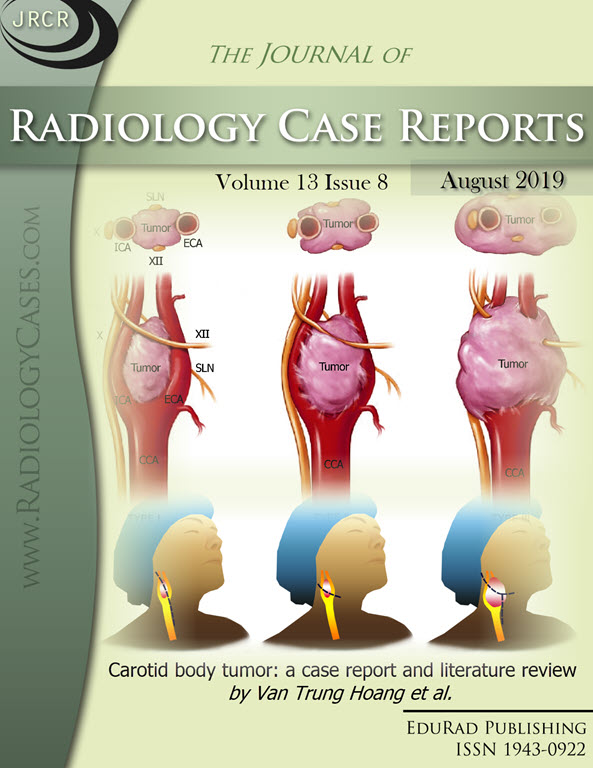 Carotid body tumor: a case report and literature review by Van Trung Hoang et al.
