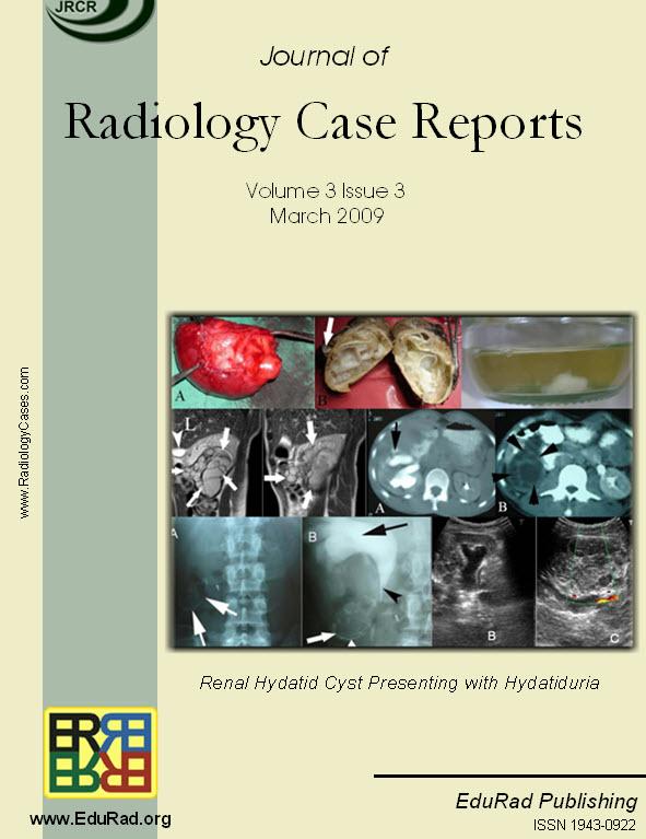 Renal Hydatid Cyst Presenting with Hydatiduria