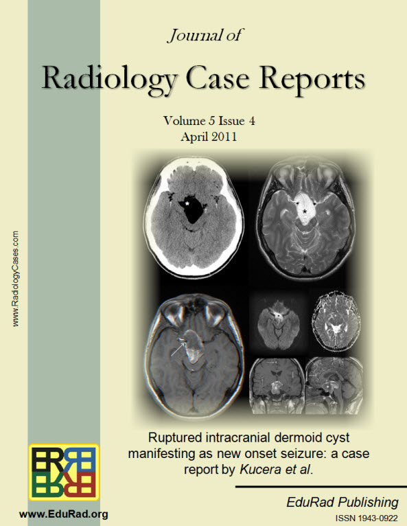 Journal of Radiology Case Reports April 2011 issue - Ruptured intracranial dermoid cyst manifesting as new onset seizure: a case report by Kucera et al.