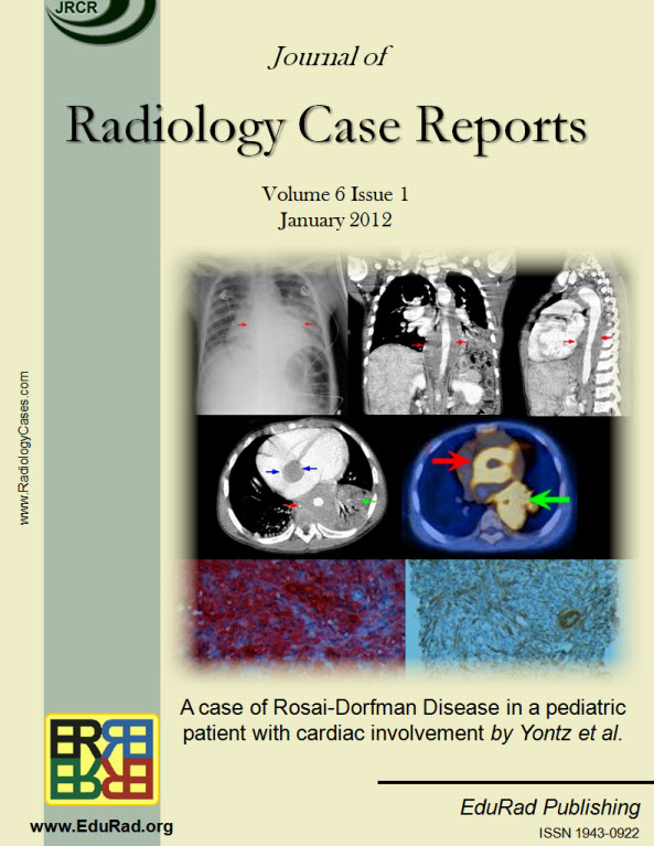 Journal of Radiology Case Reports January 2012 issue - A case of Rosai-Dorfman Disease in a pediatric patient with cardiac involvement by Yontz et al.