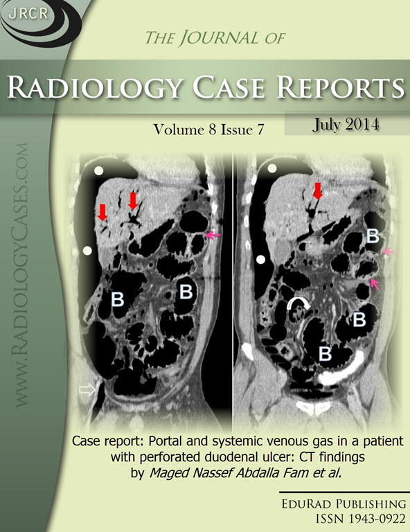Journal of Radiology Case Reports July 2014 issue - Cover page: Case report: Portal and systemic venous gas in a patient with perforated duodenal ulcer: CT findings by Maged Nassef Abdalla Fam et al.